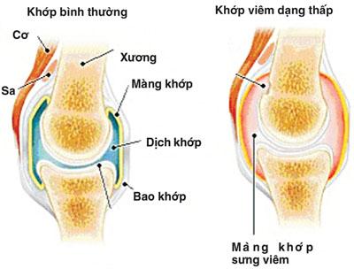 mang-khop-bi-sung-viem